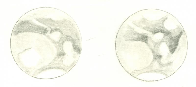Mars 196101040030